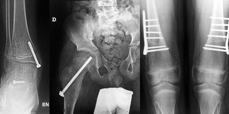 radiografia-stickler10
